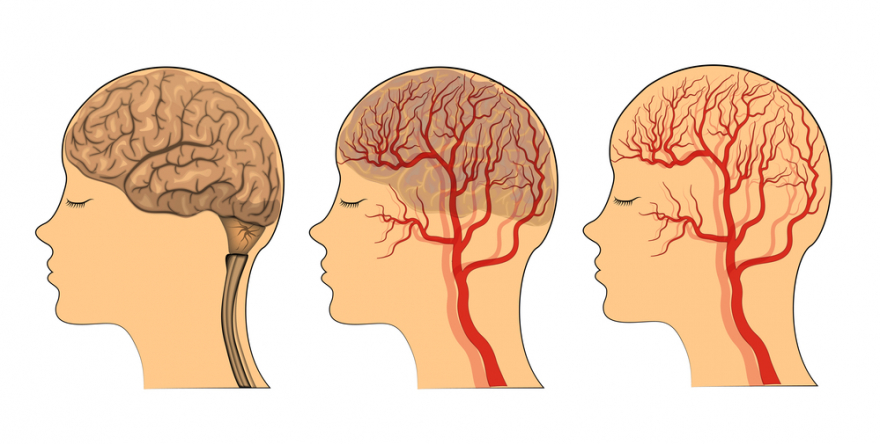 blood flow to the brain