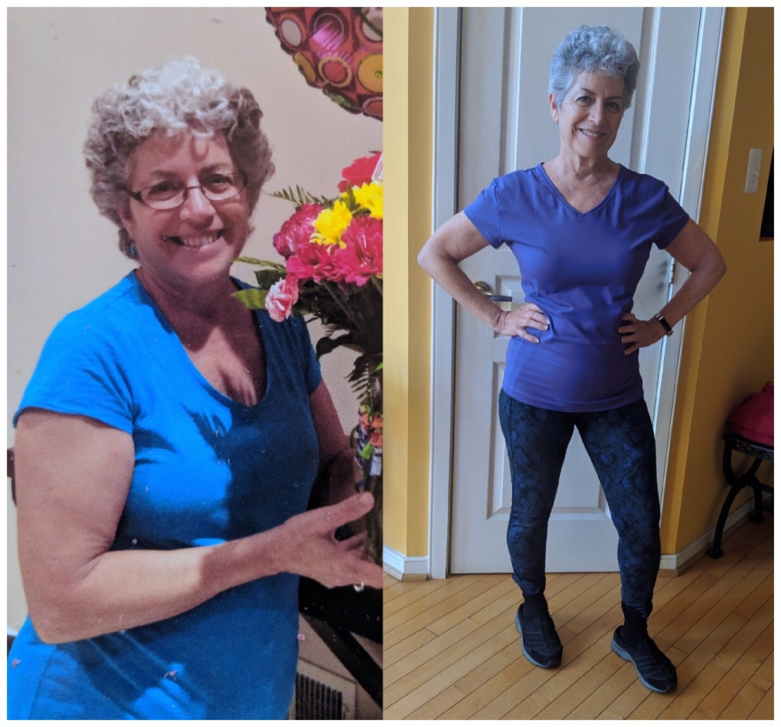 sexy over 60 before and after picture